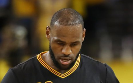 LeBron James receding hairline still an issue.